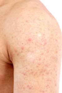 Akne Ursachen + Symptome