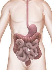 Amoebenruhr Ursachen + Symptome