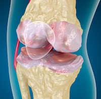 Arthrose Ursachen + Symptome