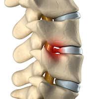 Bandscheibenvorfall Symptome / Ursachen