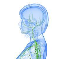 Non-Hodgkin Lymphom: Symptome und Ursachen