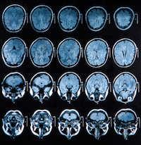 Parkinson Krankheit Ursachen + Symptome