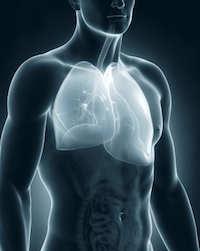 Pleuritis: Symptome und Ursachen