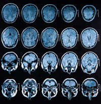 Sklerose Symptome & Ursachen